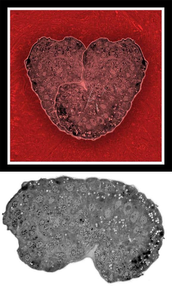 Срез эмбриона нематоды C. elegans. Снизу изображение под просвечивающим электронным микроскопом, увеличение 4 200. Вверху - после модификации в Photoshop. Третья премия «Micro-Art» на Международном конгрессе C. elegans в Лос-Анджелесе, 2015 г.